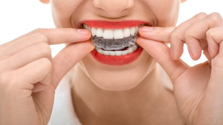 INVISALIGN – niewidoczny aparat ortodontyczny
